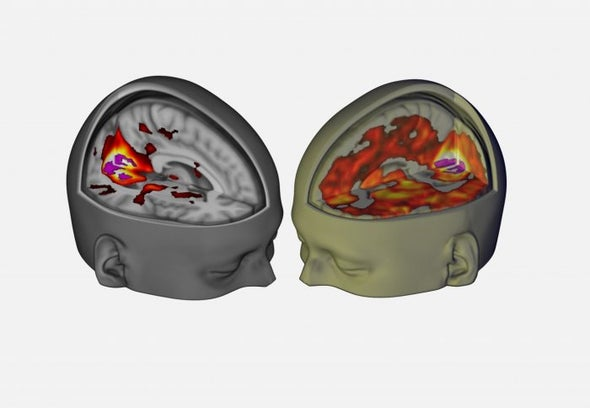 "LSD May Chip Away at the Brain's ""Sense of Self"" Network"