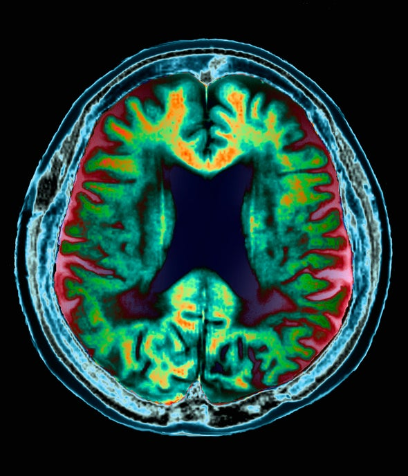 Role of Seizures in Alzheimer's Disease is Gaining Overdue Attention