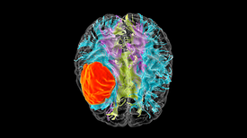 Starving Cancer Cells Could Help Treat Glioblastoma