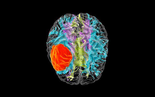 Overlooked Brain Cells May Have Leading >> Starving Cancer Cells Could Help Treat Glioblastoma