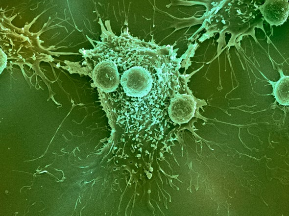 The Biology of Sugars Points to a Sweet Strategy for Treating Cancer