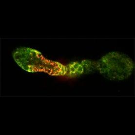 mitochondria, reproductive health, reproductive medicine, mitochondrial dna