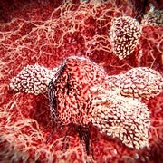 Experimental Drug That Mutes Defective Genes Raises New Hopes