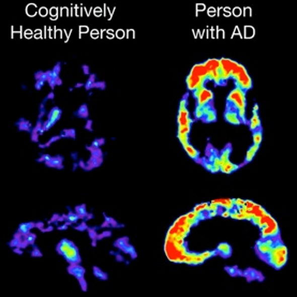 Cracks in the Plaques: Mysteries of Alzheimer's Slowly Yielding to New Research