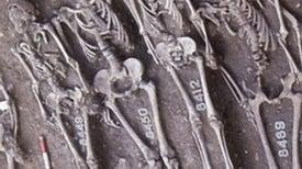 How Black Death Kept Its Genes but Lost Its Killing Power [Video]