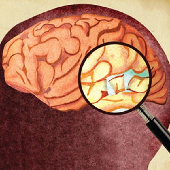 New <i>DSM-5</i> Ignores Biology of Mental Illness