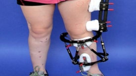 New Limb-Lengthening Tech May Reduce Complications for Sufferers of Crippling Deformities [Slide Show]