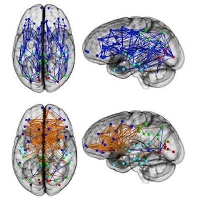 How Men\'s Brains Are Wired Differently than Women\'s - Scientific ...