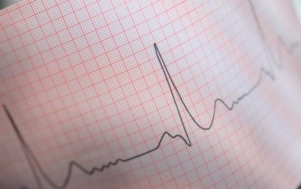 Radiation Might Help Heart Regain Its Rhythm