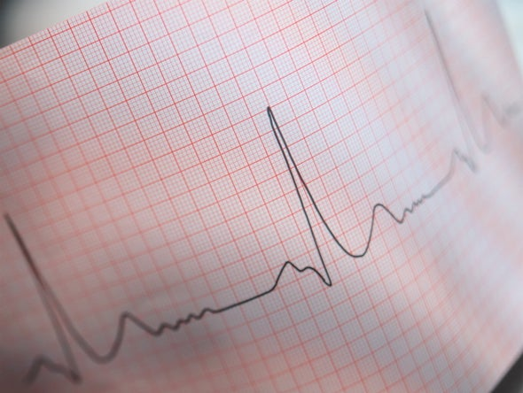 Radiation Might Help Heart Regain Its Rhythm