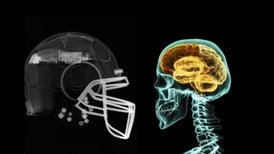Helmet Sensors Reveal the Real Impact of Head Injuries