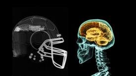 Helmet Sensors Reveal the Real Impact of Head Injuries