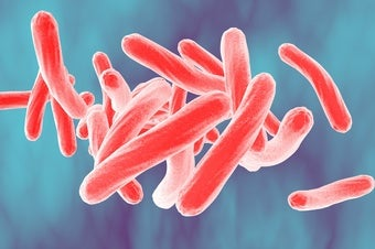 Treatment for Extreme Drug-Resistant Tuberculosis Wins U.S. Government Approval