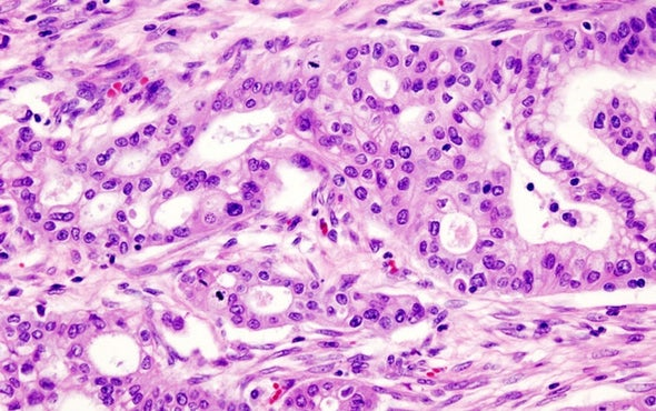 Novel Pancreatic Cancer Effort Aims to Give Patients More Treatment Options