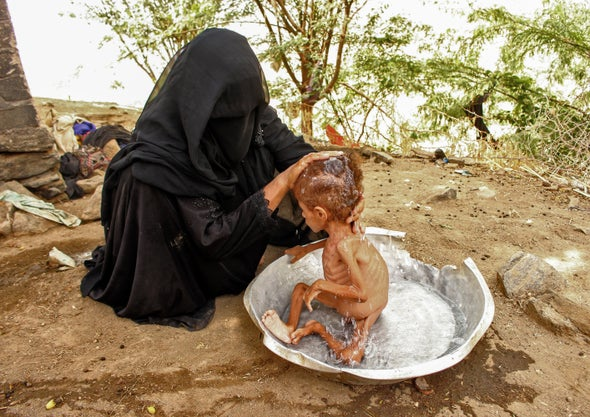 Climate Shocks Could Reverse Gains in Child Malnutrition