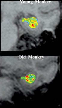 Scientists ¿See¿ Effects of Aging in Brain