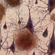 Alzheimer's Diagnostic Tests Inch Forward, but Treatments Are Still Lacking