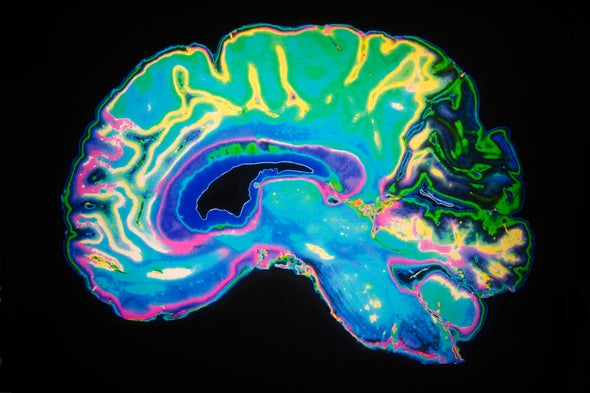 Inducing Deep Sleep after Head Injury May Protect the Brain