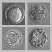 Commentary: The Eugenics Legacy of the Nobelist Who Fathered IVF