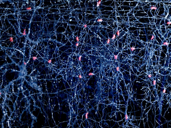 Neuronal Barcodes Shape Complex Networks In The Brain >> Bar Codes Could Map Errant Brain Wiring In Autism And Schizophrenia