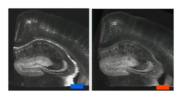 Diaper Material Brings Nanoscale Resolution to Ordinary Microscopes