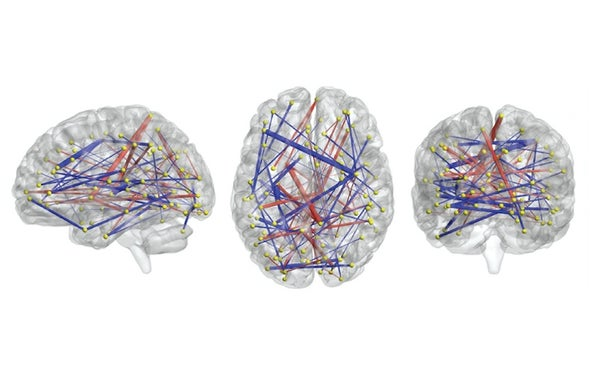 Brain Scans May Forecast Autism in Babies