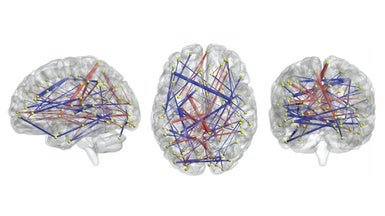 Brain Scans May Forecast Autism In High >> Brain Scans May Forecast Autism In Babies Eucyt Website