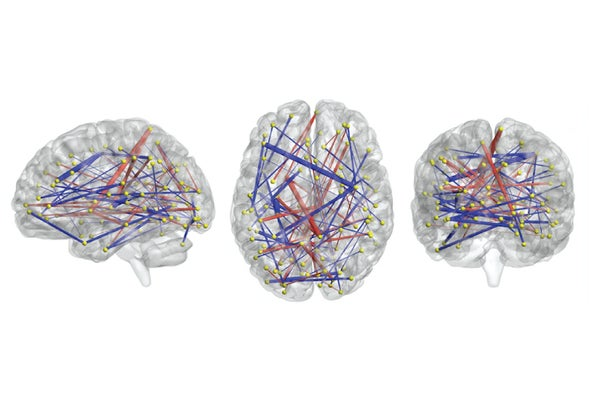 Eeg Signals Accurately Predict Autism >> Brain Scans May Forecast Autism In Babies Scientific American