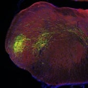 Brain-Data Gold Mine Could Reveal How Neurons Compute