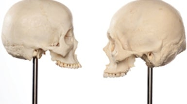How Skulls Speak