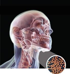 Human Papillomavirus (hpv) In Men HPV Cancers in Men Tak...