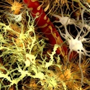 Rise of the Microglia