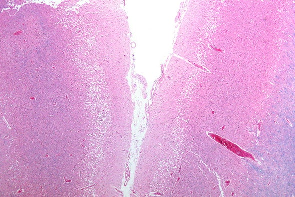 A Hidden Factor in Stroke Severity: The Microbes in Your Gut