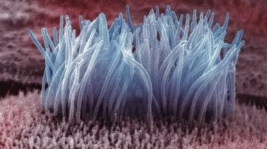 Why Scientists Are Blaming Cilia for Human Disease