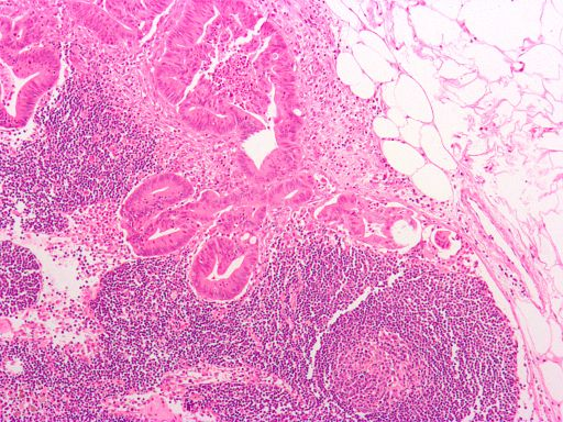 Study: Genetic Tests of Tumors Often Give False Results