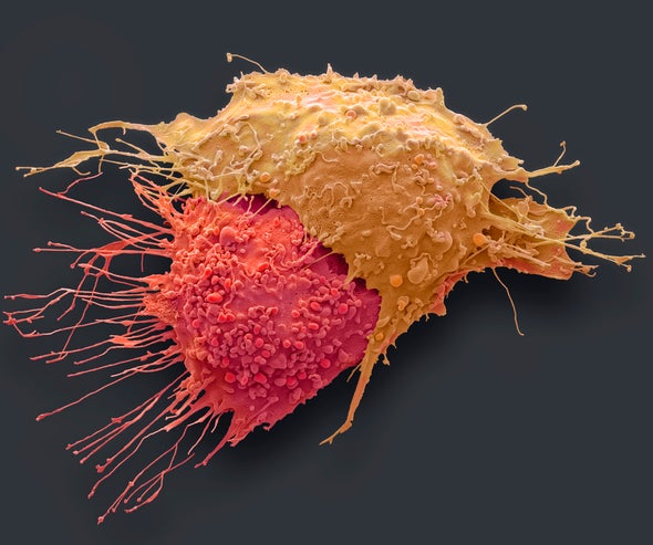 We Must Find Ways to Detect Cancer Much Earlier ...