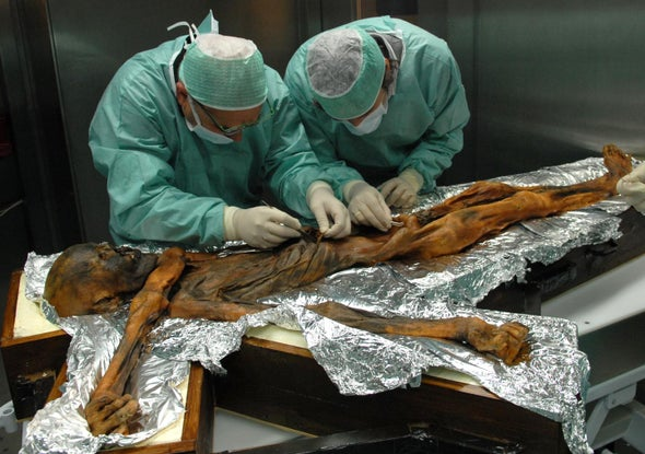Here's What Ötzi the Iceman Ate before He Was Murdered