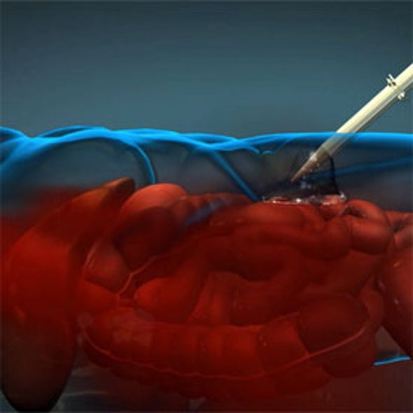 Injectable Foam Blocks Internal Bleeding on the Battlefield