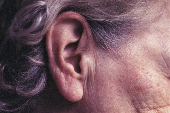 The Dangers of Excessive Earwax
