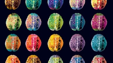 What Does a Smart Brain Look Like?