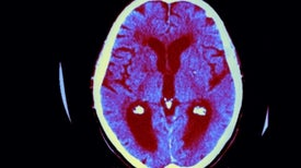 Controversial New Push to Tie Microbes to Alzheimer's Disease
