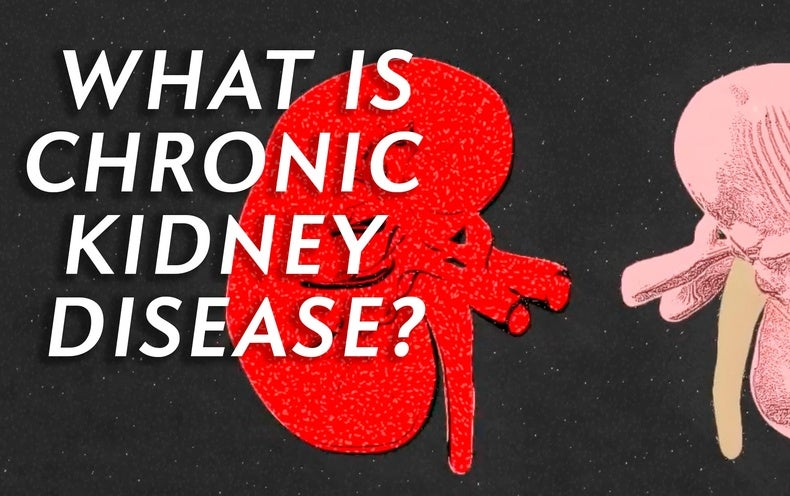 What is Chronic Kidney Disease and How Might it Affect You?