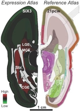 imate of two slices of brain, showing various structures within the brain