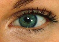Eyedrops Delay Onset of Glaucoma