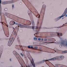 fungal meningitis, human brains, Exserohilum rostratum, E. rostratum, fungal meningitis outbreak, pathogen, fungus