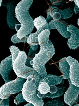 Could Multiple Sclerosis Begin in the Gut Scientific American