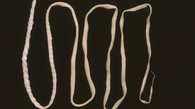 Brain-Invading Tapeworm That Eluded Doctors Spotted by New DNA Test