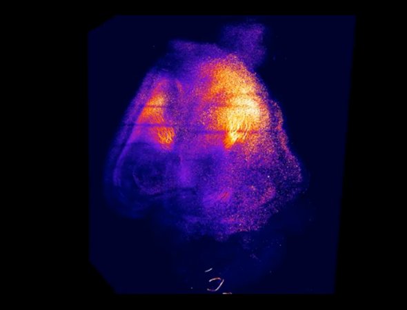 Transparent Brains Reveal Effects of Cocaine and Fear [Video]