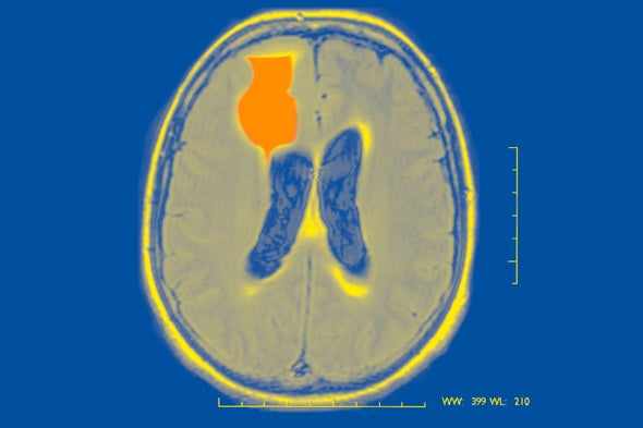 Forecasts of Epilepsy Seizures Could Become a Reality