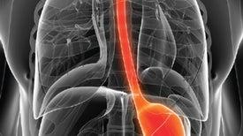 Heartburn Meds Alter the Gut